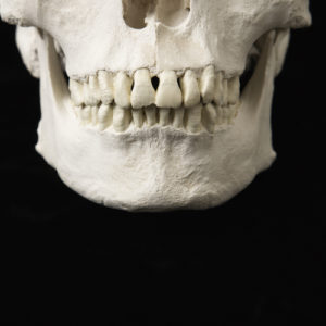 How To Solve Crimes With Forensic Odontology